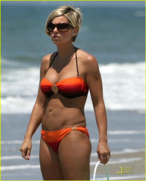 Yup. You can see the scar, but she sure looks smokin' hot in that bikini. You go, girl!