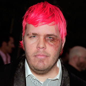 Perez Hilton, With a Black Eye, Which He Gets Often, Because He's a Total Priznickle To Peoplez.